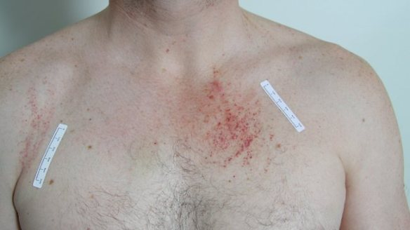COURT-Photograph of injuries police found on Gerard Baden-Clay's chest on the day he reported his wife Allison missing.
