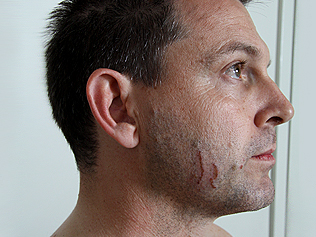 Scratches on the accused, Gerard Baden-Clay.