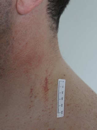 Image of injuries police found on Gerard Baden-Clay on the day he reported his wife Allison missing.