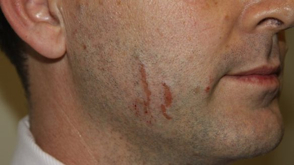 Photograph of injuries police found on Gerard Baden-Clay's face on the day he reported his wife Allison missing