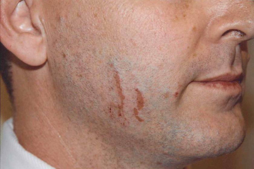 An expert told the court the marks on Gerard Baden-Clay's face were typical of fingernail scratches.