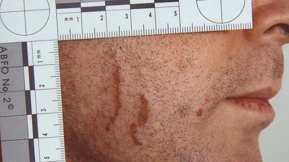 Court exhibits from the Gerard Baden-Clay murder trial. Images of cuts and scratches on Gerard Baden-Clay's body.